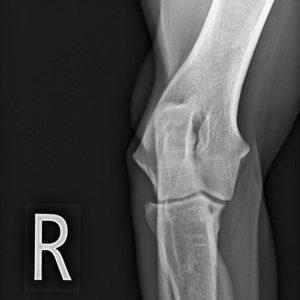 Röntgen Hoogstraten