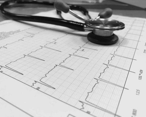 Cardiologie Hoogstraten